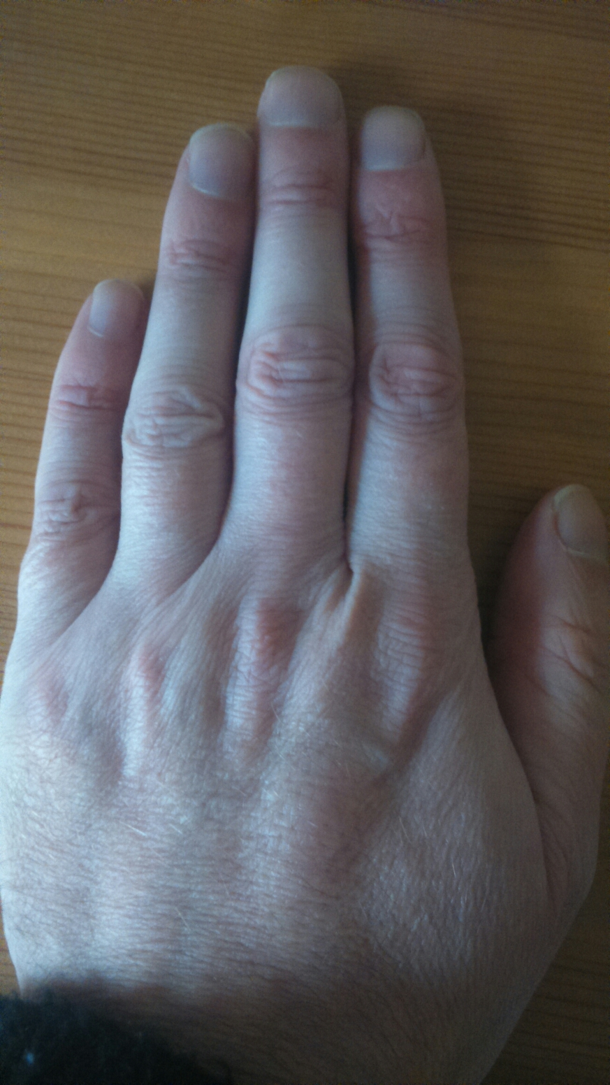 Length of fingers homosexuality statistics